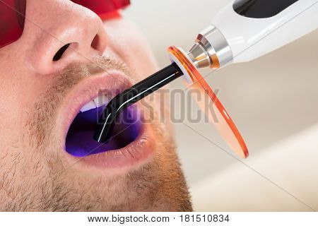 Man's Teeth Are Treated With Dental UV Curing Light Lamp