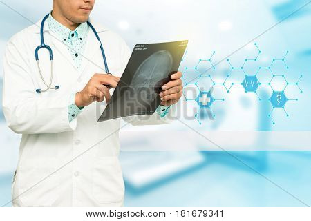 Asian Male Medical Doctor With Xray Film On White Background