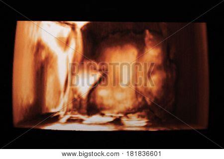 Ultrasound baby scan