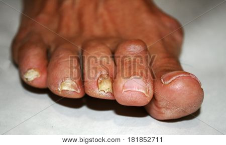 Fungus on the nail. Twisted fingers on the foot with calluses. Bone on the big toe