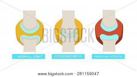 Normal Joint Osteoarthritis Rheumatoid Arthritis Vector Illustration