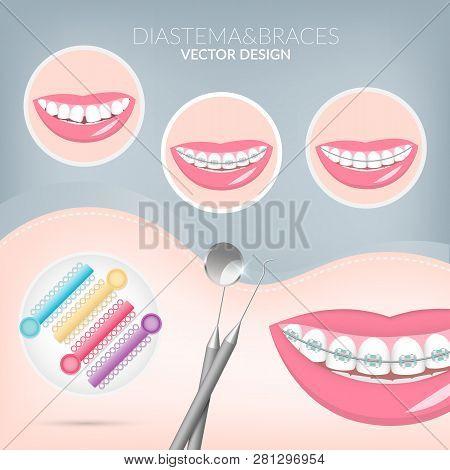 Dentist, Orthodontist. Teeth Healthy And Dental Braces. Dentistry Instruments Metal Braces, Dental L