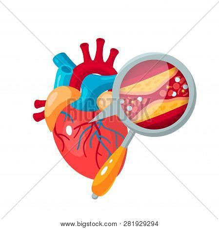 Atherosclerosis Concept. Human Heart And Zoomed Artery With Plaque. Medical Vector Illustration In F
