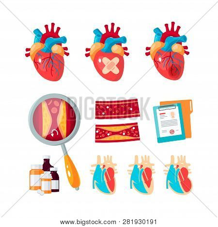 Set Of Cardiology Vector Icons In Flat Style. Human Hearts, Arteries, Common Cardiac Diseases. Eleme
