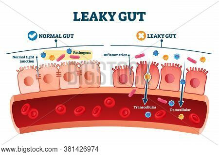 Leaky Gut Syndrome As Medical Chronic Inflammation Condition Explanation. Labeled Autoimmune Health