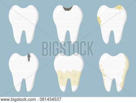 Dental Diseases. Tooth Decay, Inflammation, Dental Plaque, Periodontal Disease. Concept Of Dentistry