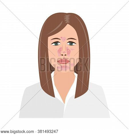 Unhappy Woman Suffering From Seborrheic Dermatitis. Vector Illustration. Adult Or Teenager Face With