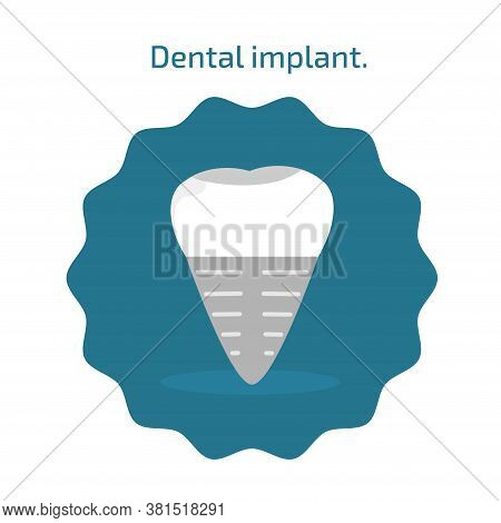 Icon Human Dental Implant In Flat Style. Stock Vector Illustration For Dentistry. Dental Icons On Bl