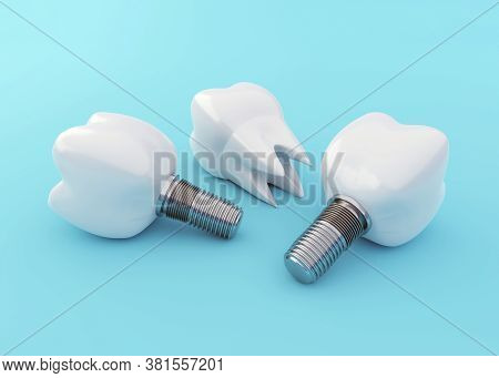 Tooth Implants And Tooth Crown On Blue Background, Artificial Teeth, Dental Implantation Concept, 3d