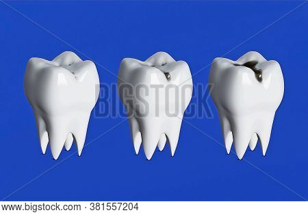 Three Teeth In A Row, Three Stages Of Tooth Decay, Caries, Sore Teeth, 3d Render