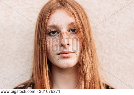 Close-up Portrait Of Young Teen Freckled Ginger Girl Looking At Camera