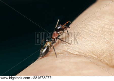 Male Ant Mimicking Jumping Spider On Hand