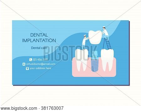 Vector Dental Implant Dentistry Business Card Design. Two Implantologists Place A Dental Implant: A