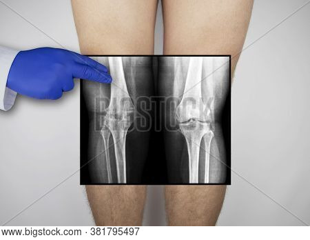 X-ray Of A Man's Knees. A Photograph Of The Knee Caps And Parts Of The Bones Are Applied To The Pati