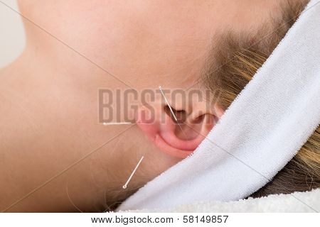Close-up Of Acupuncture Needles On An Ear.