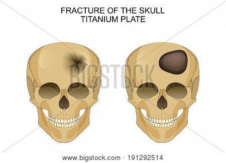 vector illustration of traumatic brain injury. titanium plate