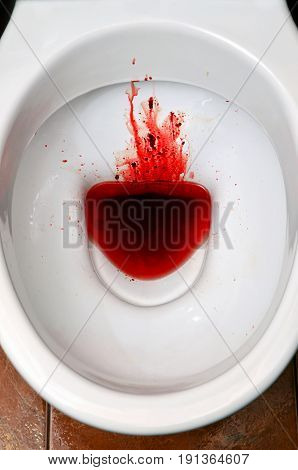 A White Ceramic Toilet Bowl Is Stained With Blood. The Consequences Of Pronounced Menstruation, Dysb
