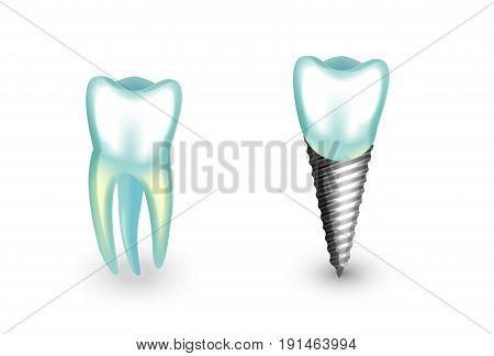 vector illustration of a dental implant. molar orthodontics