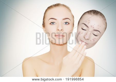 woman takes away mask with acne and pimples skin renovating concept