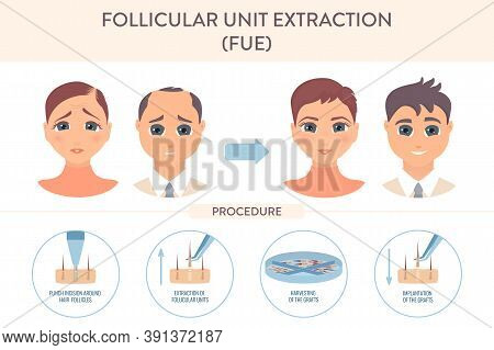 Fue Hair Transplantation Procedure Medical Infographic Poster