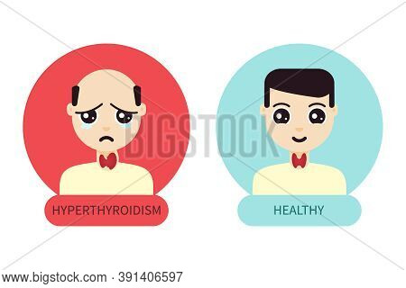 Men With Normal And Hyperthyroid Gland Poster