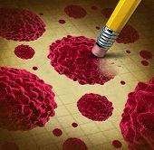 Cancer treatment with cells spreading and growing as malignant growth in a human body caused by environmental carcinogens and DNA damage showing a pencil eraser removing the disease. poster