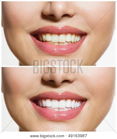Woman Teeth Before and After Whitening. Over white background. Happy smiling woman. Dental health Concept. Oral Care poster