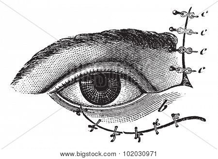 Blepharoplasty by the method of Blasius, vintage engraved illustration. Usual Medicine Dictionary - Paul Labarthe - 1885.