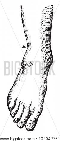 Fibula fracture with A highly charged, and a projection of the foot outside, vintage engraved illustration. Usual Medicine Dictionary - Paul Labarthe - 1885.