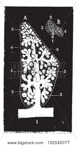 Pulmonary lobule, vintage engraved illustration. Usual Medicine Dictionary by Dr Labarthe - 1885.