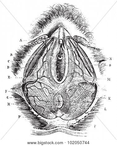 poster of Perineum in women, vintage engraved illustration. Usual Medicine Dictionary - Paul Labarthe - 1885.