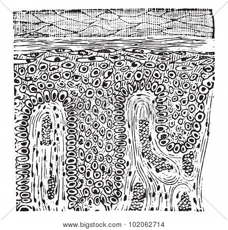 Squamous epithelioma, vintage engraved illustration.