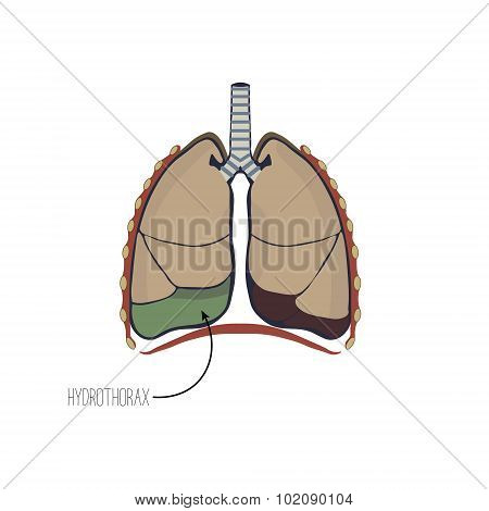 Accumulation of fluid in the pleural cavity of the lungs