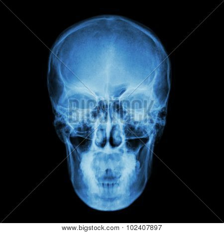 X-ray Skull And Stroke ( Cerebrovascular Accident (cva) )