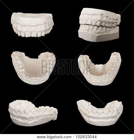 Set of Dental casting gypsum models plaster cast stomatologic hu