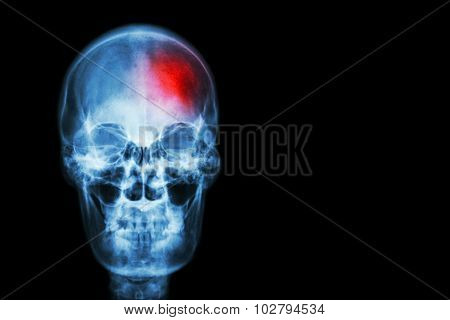 Stroke ( Cerebrovascular Accident ) . Film X-ray Skull Of Human With Red Area ( Medical , Science An