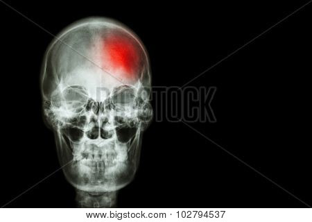 Stroke ( Cerebrovascular accident ) . film x-ray skull of human with red area ( Medical , Science and Healthcare concept and background ) poster