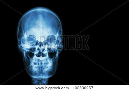 Film X-ray Skull Of Human And Blank Area At Right Side ( Medical , Science And Healthcare Concept An