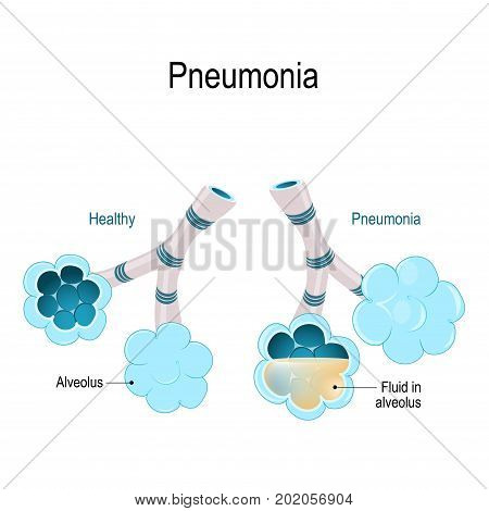 pneumonia. Healthy alveoli and alveolus with pneumonia. Illustration shows normal and infected alveoli.