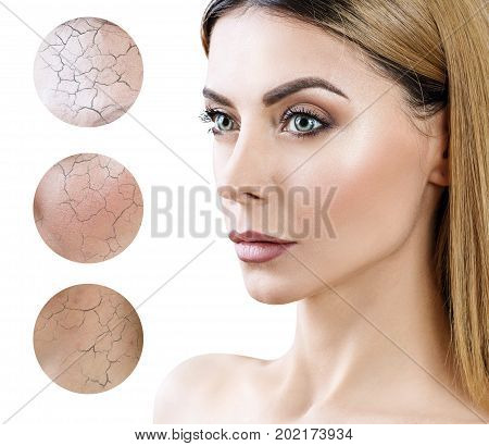 Face of adult woman with dry skin in circles. Concept of rejuvenation and skincare.