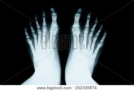 The X-RAY of foot human on black.