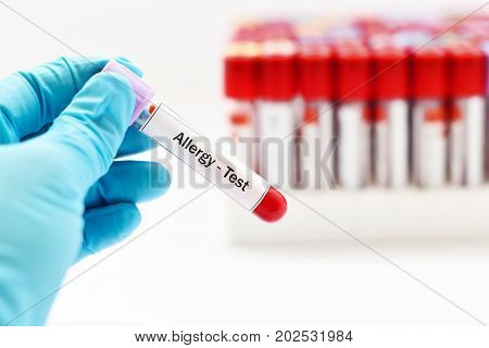 Test tube with blood sample for allergy test