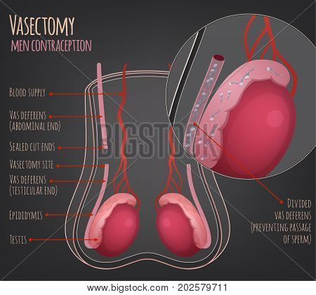 Man vasectomy image. Contraception concept. Male reproductive organs with useful information. Testis, scrotum and vessels. Vector illustration isolated on a dark grey background.