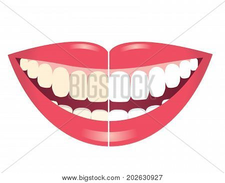 before and after whitening teeth isolated on white background
