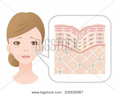 woman face with winkles. diagram of old skin showing the collagen framework is broken and wrinkles appears