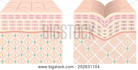 diagrams of young skin and old skin. young skin is firm tight, its collagen framework is healthy. old skin sags as it loses its support structure