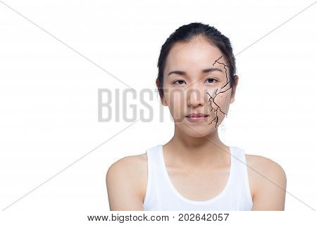 Closeup Of Woman Cracked And Damaged Face As Cosmetic And Dehydration Effect Concept Isolated On Whi