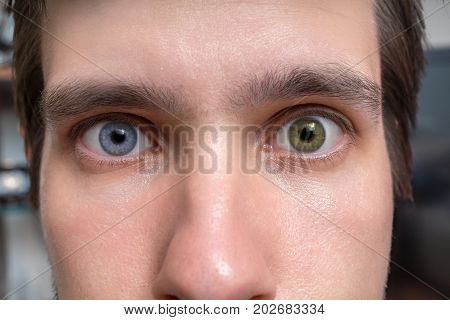 Young Man With Heterochromia - Two Different Colored Eyes. Conta
