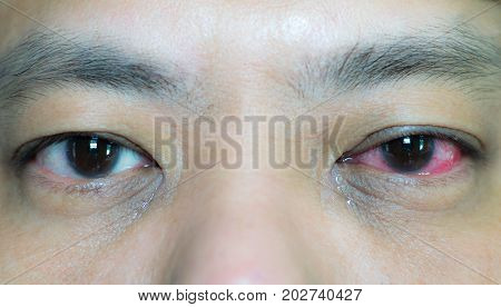 Closed-up image of asian male's conjunctivitis eye compare with normal eye at the other side.