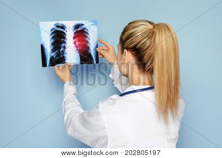 Doctor with x-ray image on color background. Lung cancer concept